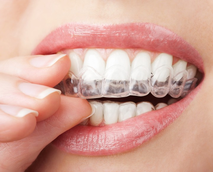 Invisalign: l'alternativa als braquets
